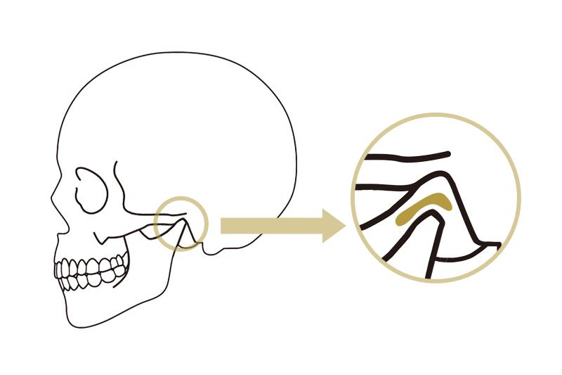正常なあごの関節円板の位置 東京都中央区銀座オーク銀座歯科