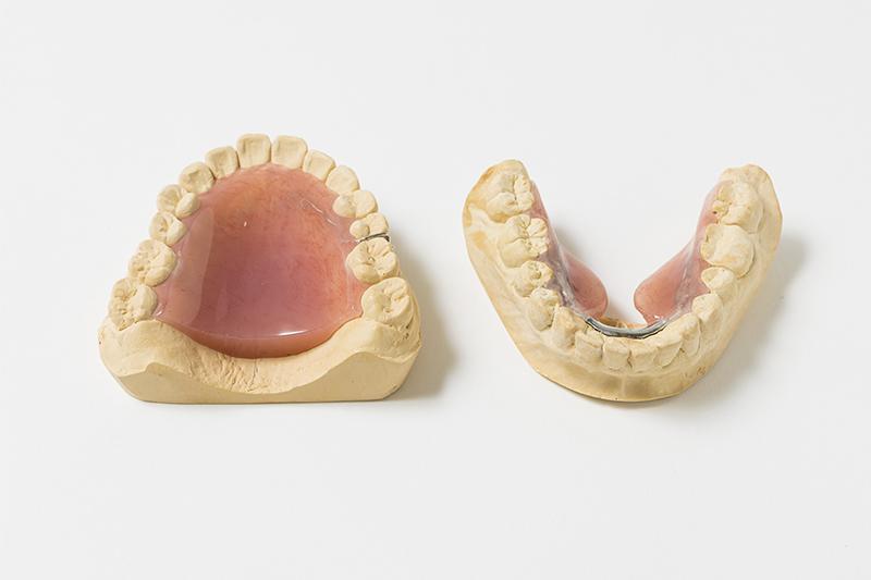 東京都中央区銀座オーク銀座歯科の舌の位置矯正